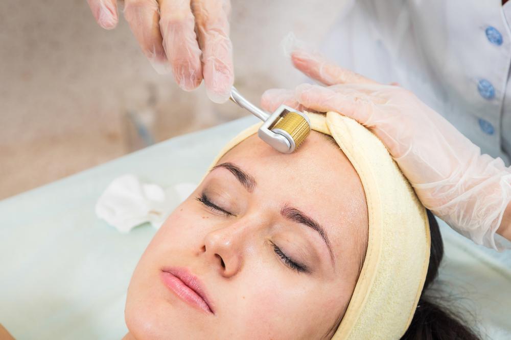Dermaroller Treatments