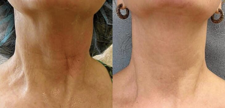 RadiofrequencyTreatments