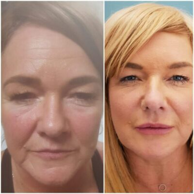 Non-Surgical Semi Facelifts
