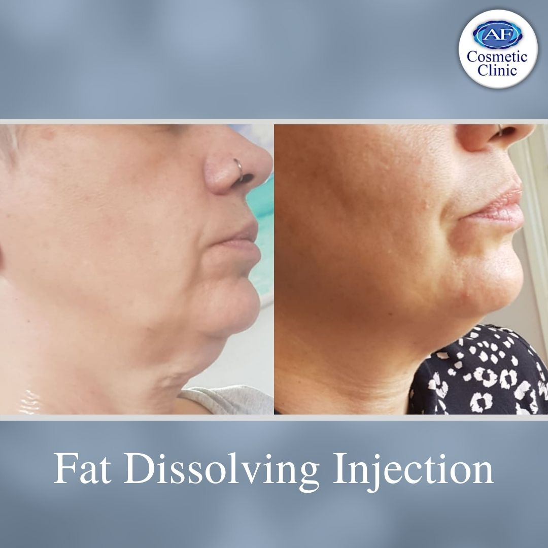 Fat Dissolving Injections